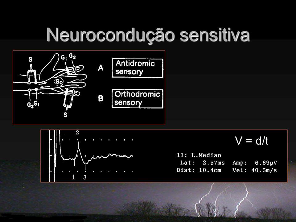 Neurocondução sensitiva V = d/t
