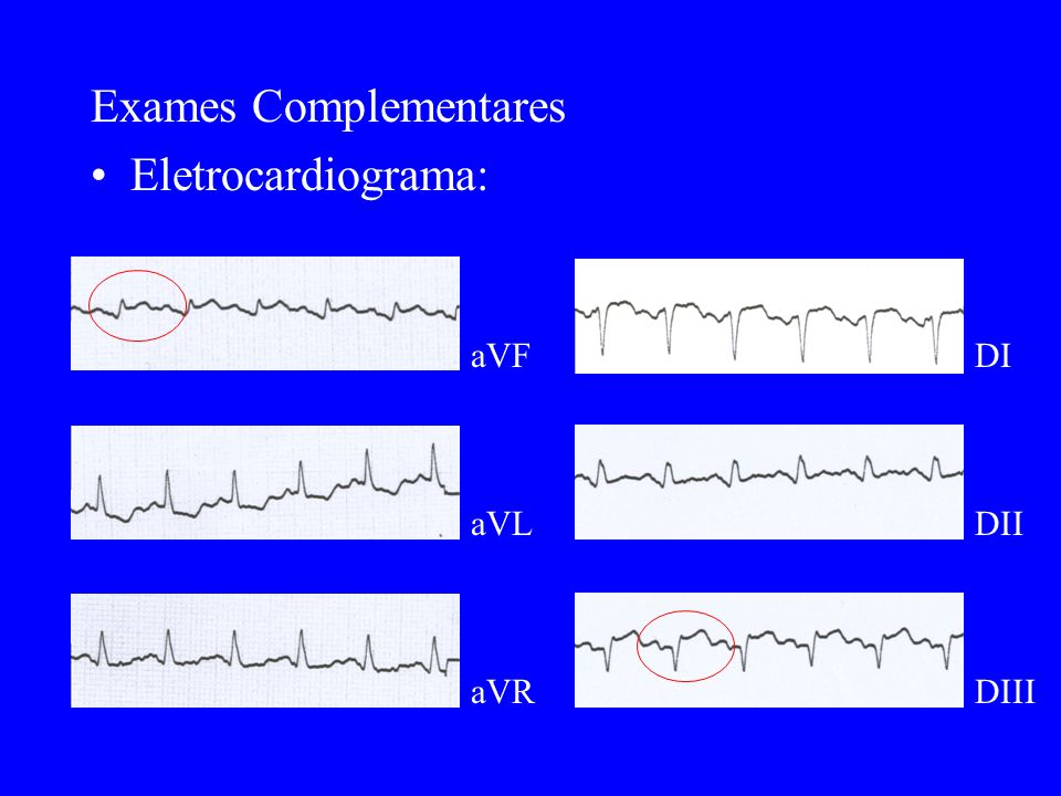 Exames Complementares Eletrocardiograma: aVF aVL aVR DI DII DIII