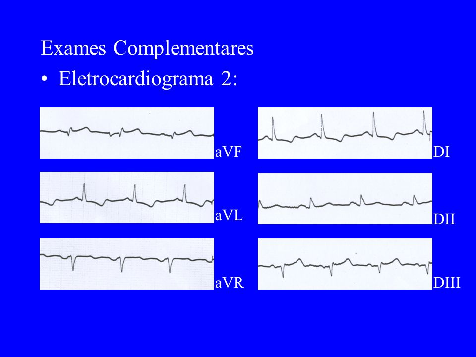 Exames Complementares Eletrocardiograma 2: aVF aVL aVR DI DII DIII