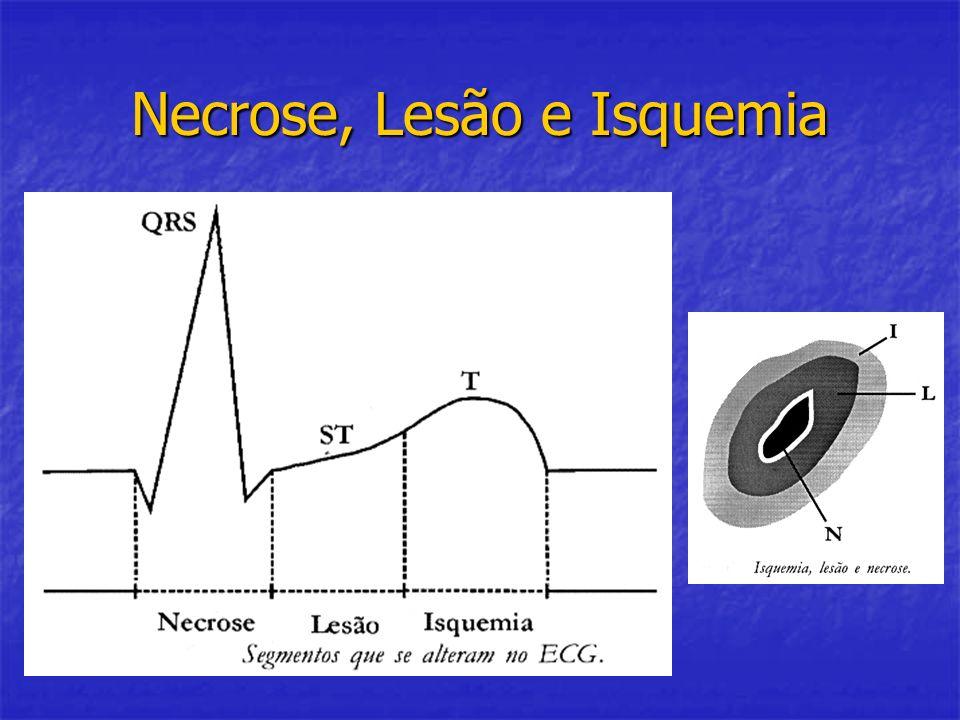 Necrose, Lesão e Isquemia