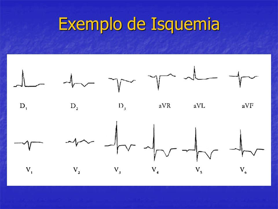 Exemplo de Isquemia