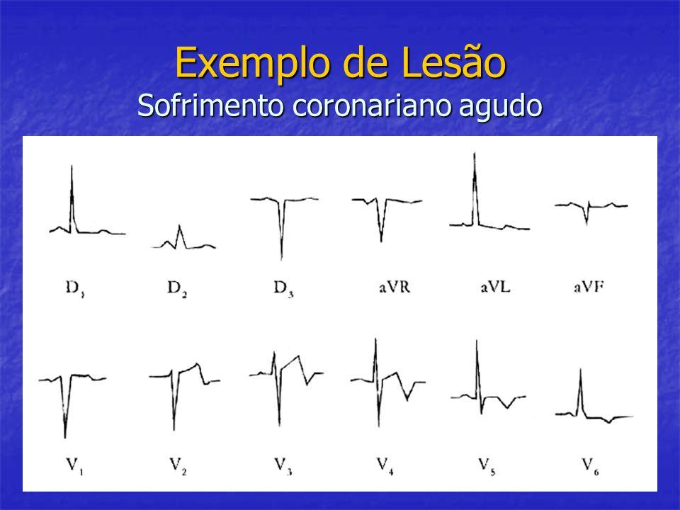 Exemplo de Lesão Sofrimento coronariano agudo
