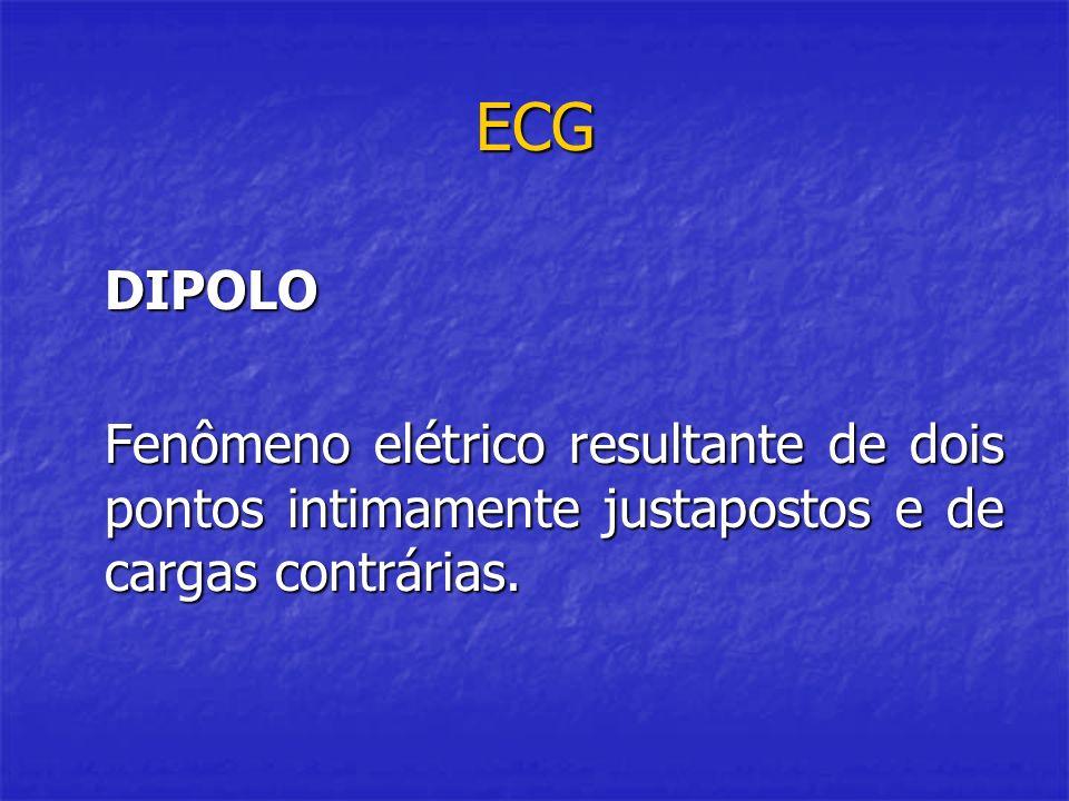 ECG DIPOLO Fenômeno elétrico resultante de dois pontos intimamente justapostos e de cargas contrárias.