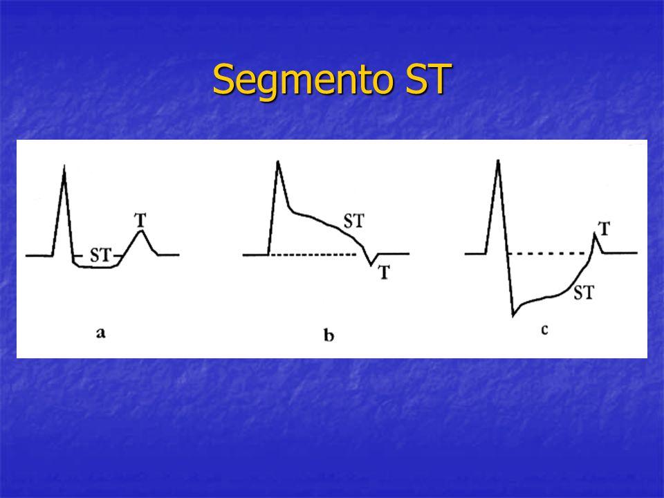 Segmento ST