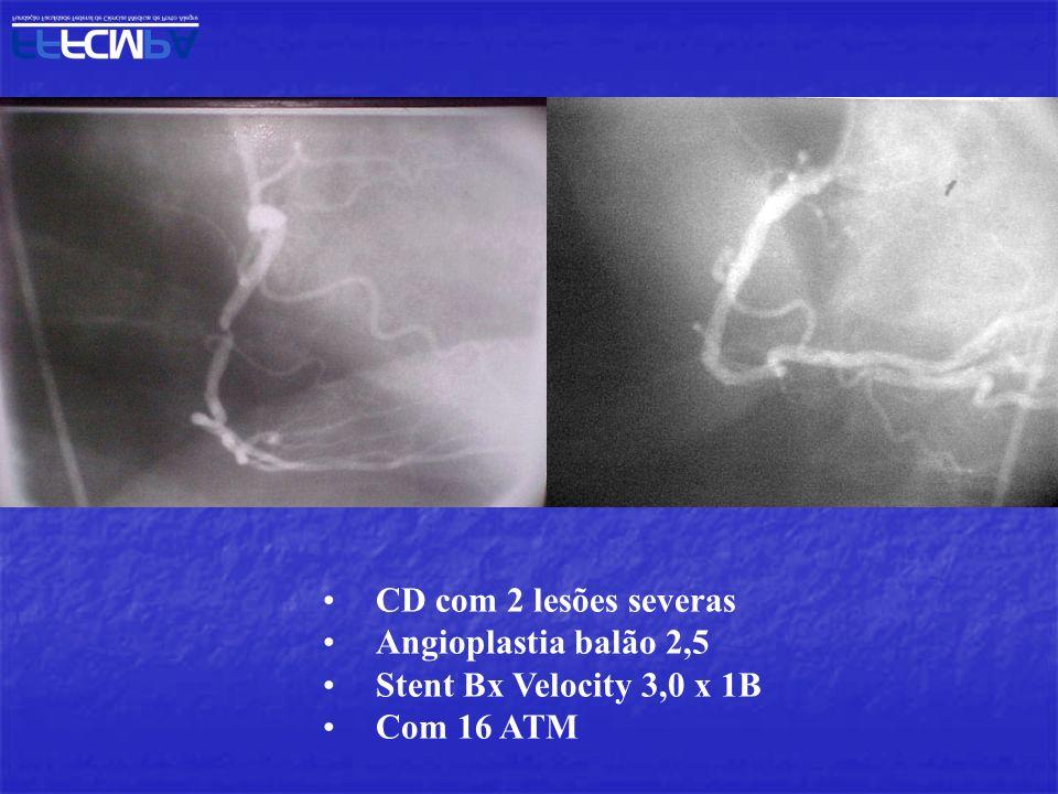 CD com 2 lesões severas Angioplastia balão 2,5 Stent Bx Velocity 3,0 x 1B Com 16 ATM