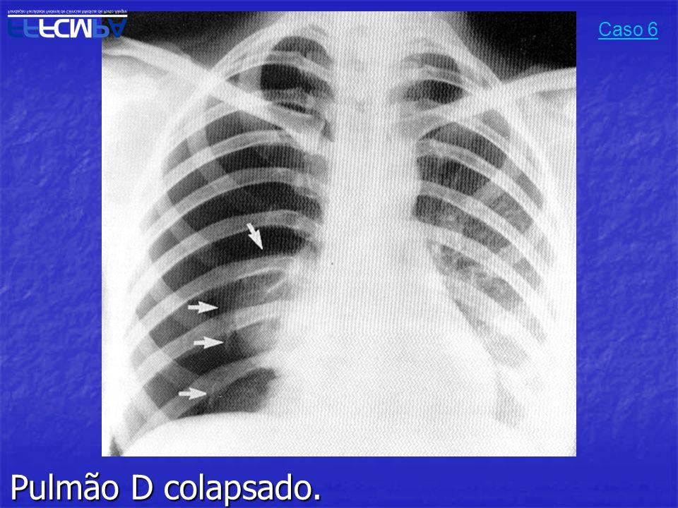 Pulmão D colapsado. Caso 6