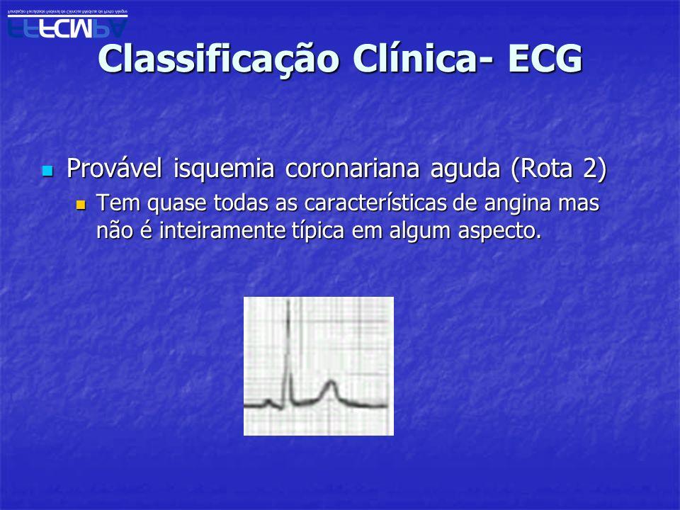 Classificação Clínica- ECG Provável isquemia coronariana aguda (Rota 2) Provável isquemia coronariana aguda (Rota 2) Tem quase todas as característica