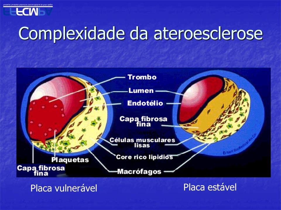 Complexidade da ateroesclerose Placa vulnerável Placa estável
