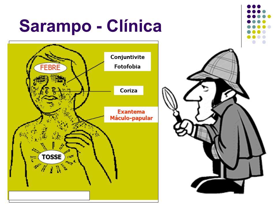 Sarampo - Clínica Conjuntivite Fotofobia Coriza Exantema Máculo-papular TOSSE FEBRE