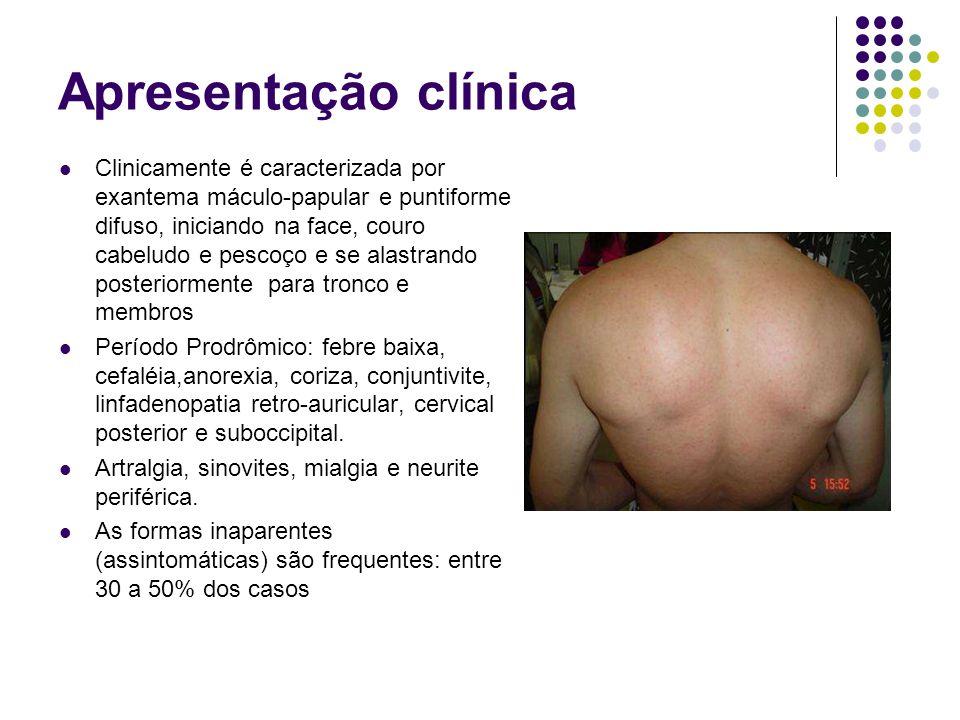 Apresentação clínica Clinicamente é caracterizada por exantema máculo-papular e puntiforme difuso, iniciando na face, couro cabeludo e pescoço e se al