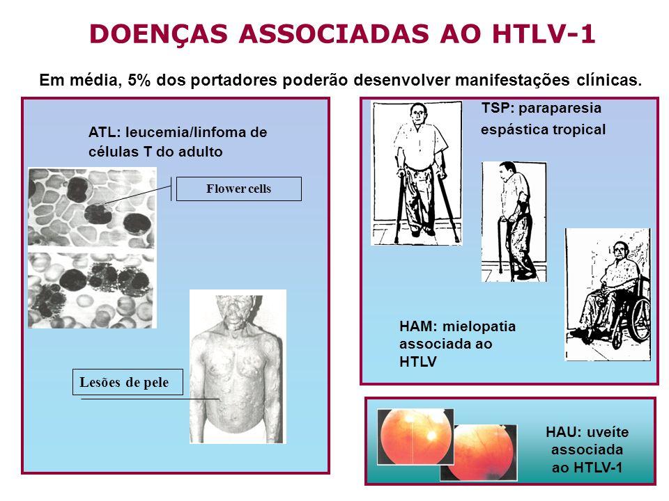 ATL: leucemia/linfoma de células T do adulto Flower cells Lesões de pele DOENÇAS ASSOCIADAS AO HTLV-1 TSP: paraparesia espástica tropical HAM: mielopa