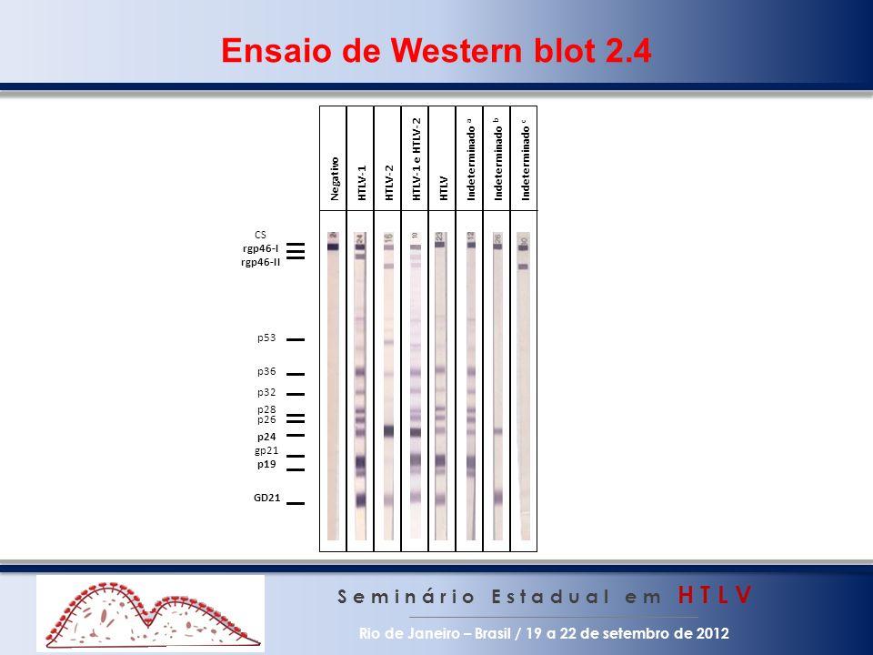 S e m i n á r i o E s t a d u a l e m H T L V Rio de Janeiro – Brasil / 19 a 22 de setembro de 2012 Ensaio de Western blot 2.4 p24 CS rgp46-I rgp46-II p53 p36 p32 p28 p26 p19 GD21 gp21 NegativoHTLV-1HTLV-2HTLVIndeterminado a Indeterminado b Indeterminado c HTLV-1 e HTLV-2 10