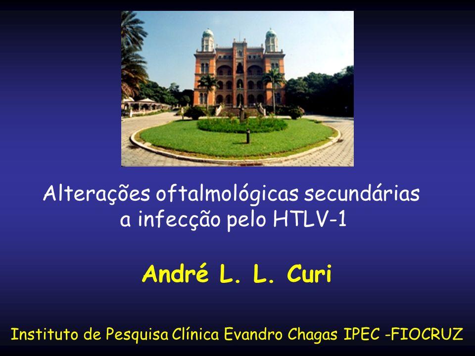 Ceratoconjuntivite sicca Uveíte intermediária Ceratite intersticial Papilite Vasculite Alterações oftalmológicas secundárias a infecção pelo HTLV-1