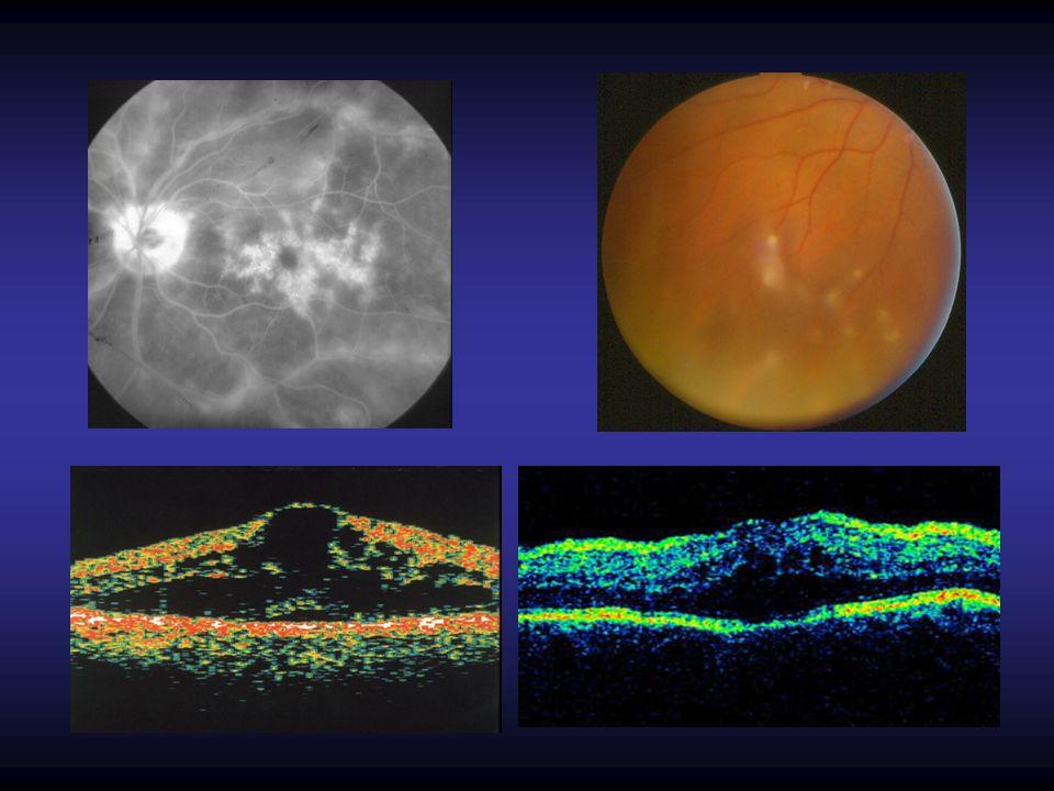 Asymptomatic carriers HTLV-1 associated myelopathy Alterações oftalmológicas secundárias a infecção pelo HTLV-1