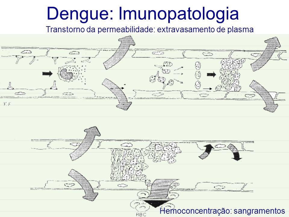 Dengue: Imunopatologia Hemoconcentração: sangramentos Transtorno da permeabilidade: extravasamento de plasma