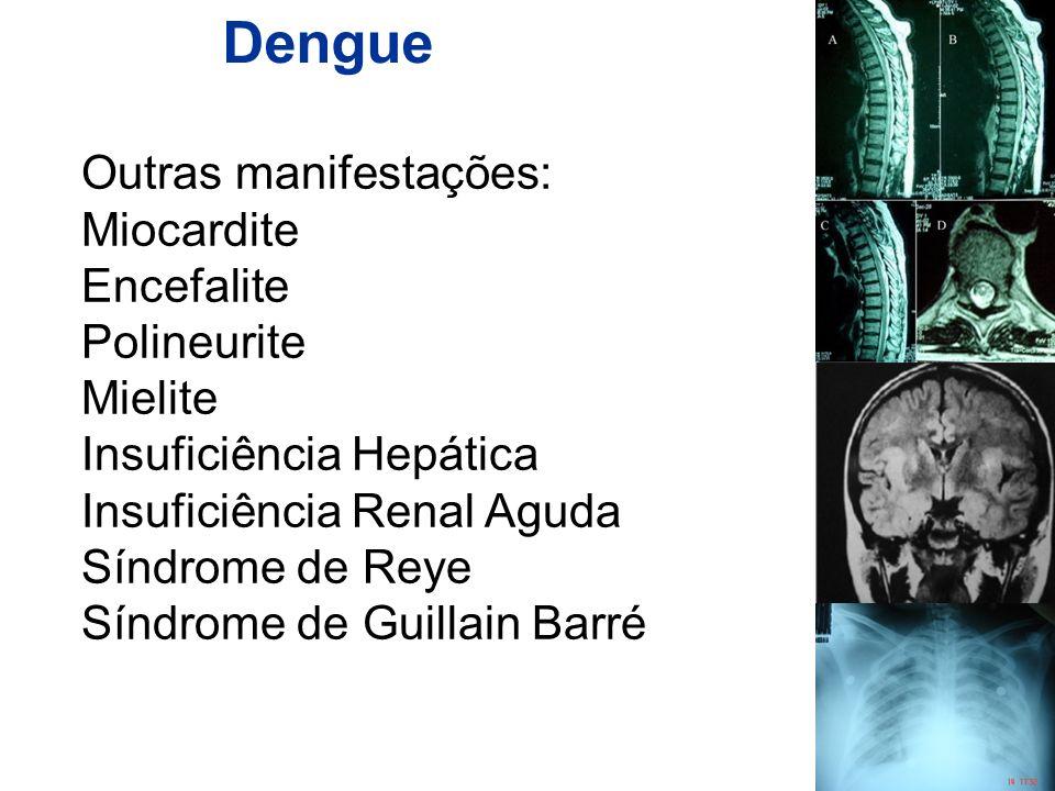 Dengue Outras manifestações: Miocardite Encefalite Polineurite Mielite Insuficiência Hepática Insuficiência Renal Aguda Síndrome de Reye Síndrome de G