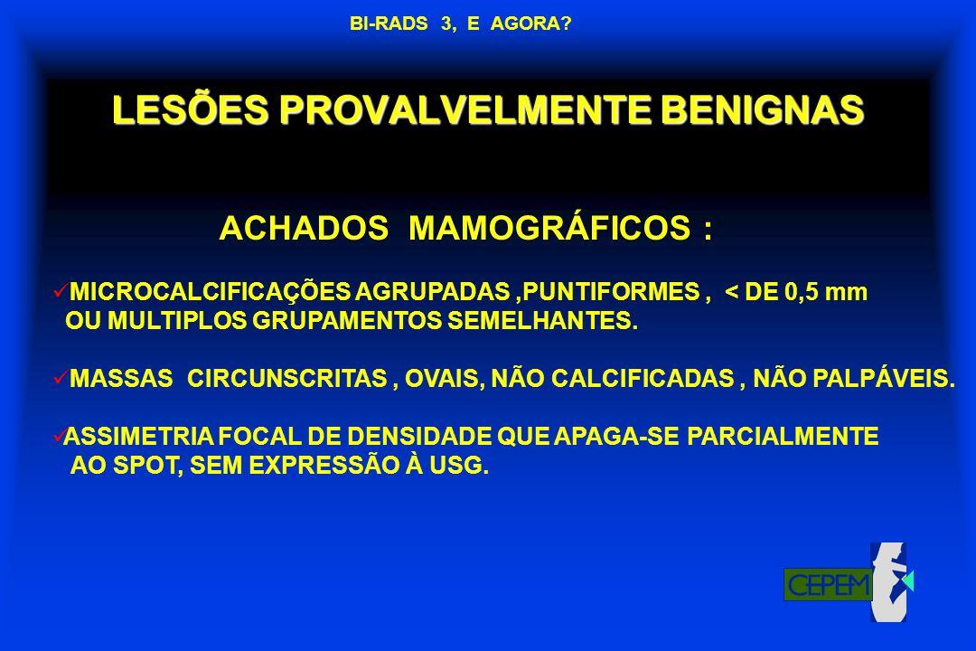 LESÕES PROVALVELMENTE BENIGNAS ACHADOS MAMOGRÁFICOS : MICROCALCIFICAÇÕES AGRUPADAS,PUNTIFORMES, < DE 0,5 mm OU MULTIPLOS GRUPAMENTOS SEMELHANTES. MASS