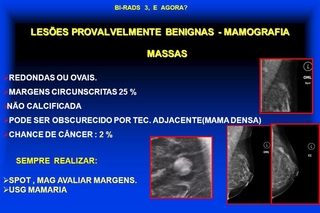 LESÕES PROVALVELMENTE BENIGNAS - MAMOGRAFIA SEMPRE REALIZAR: SPOT, MAG AVALIAR MARGENS. SPOT, MAG AVALIAR MARGENS. USG MAMARIA USG MAMARIA MASSAS REDO