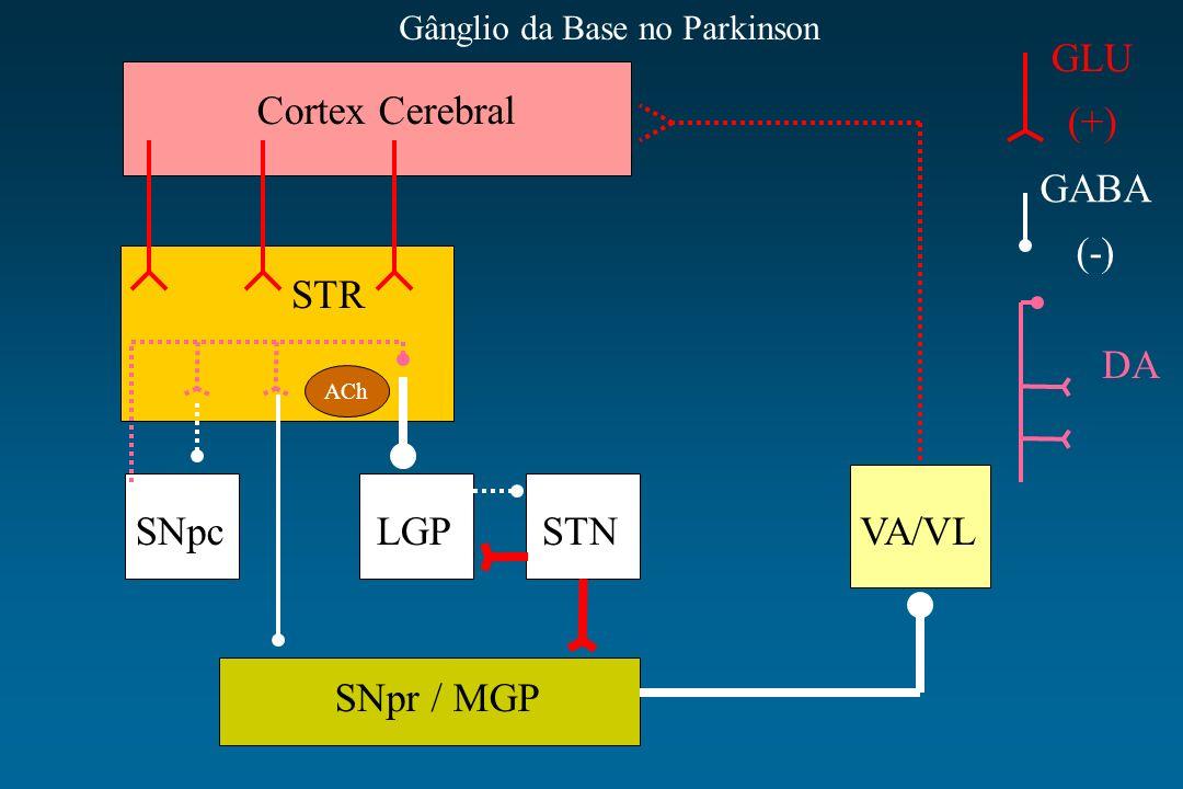 Cortex Cerebral STR SNpcLGPSTNVA/VL SNpr / MGP ACh GLU (+) GABA (-) DA Gânglio da Base no Parkinson