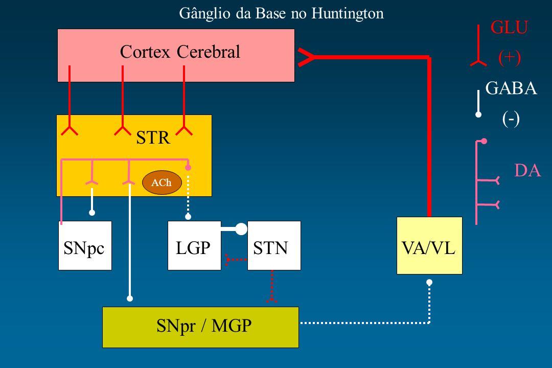 Cortex Cerebral STR SNpcLGPSTNVA/VL SNpr / MGP ACh GLU (+) GABA (-) DA Gânglio da Base no Huntington