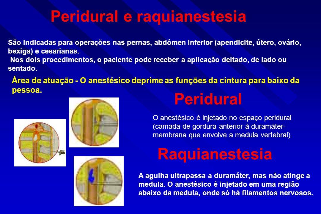 Peridural e raquianestesia Peridural e raquianestesia São indicadas para operações nas pernas, abdômen inferior (apendicite, útero, ovário, bexiga) e cesarianas.