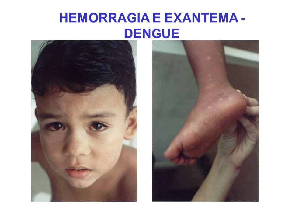 HEMORRAGIA E EXANTEMA - DENGUE
