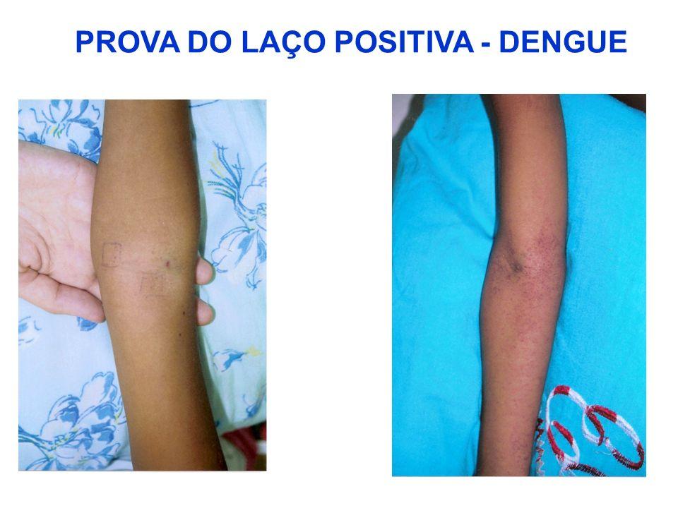 PROVA DO LAÇO POSITIVA - DENGUE