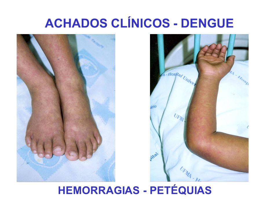 ACHADOS CLÍNICOS - DENGUE HEMORRAGIAS - PETÉQUIAS