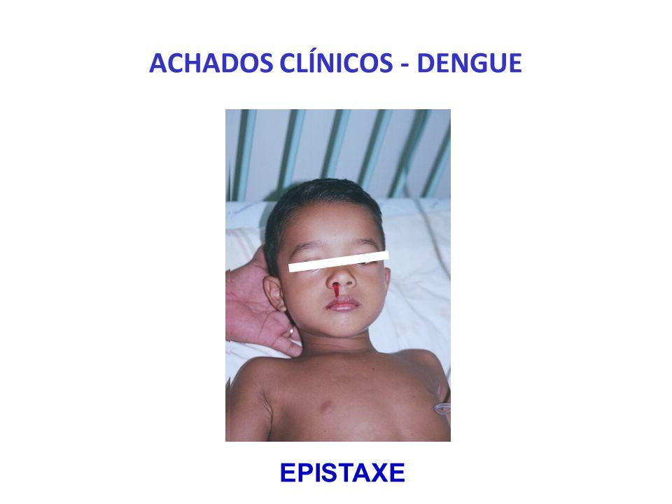 ACHADOS CLÍNICOS - DENGUE EPISTAXE