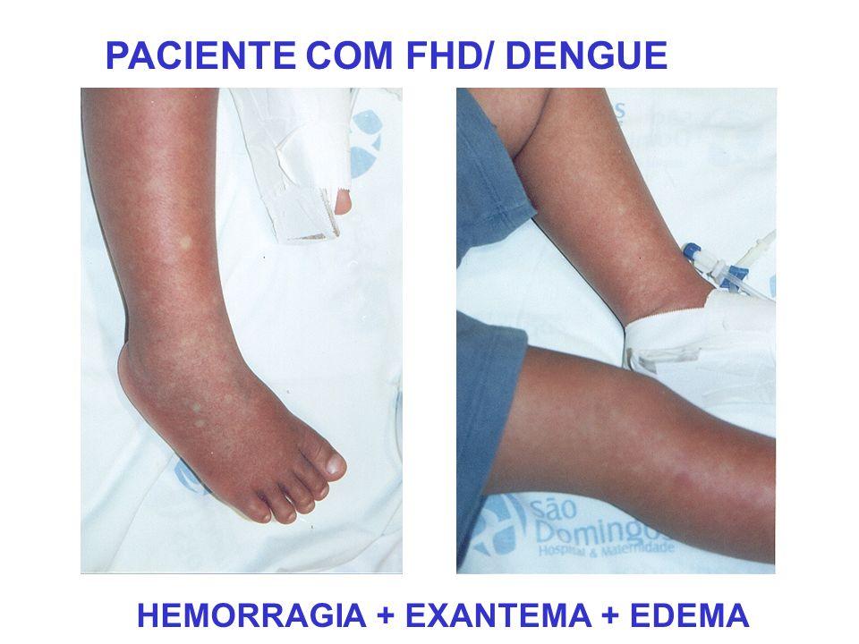 PACIENTE COM FHD/ DENGUE HEMORRAGIA + EXANTEMA + EDEMA