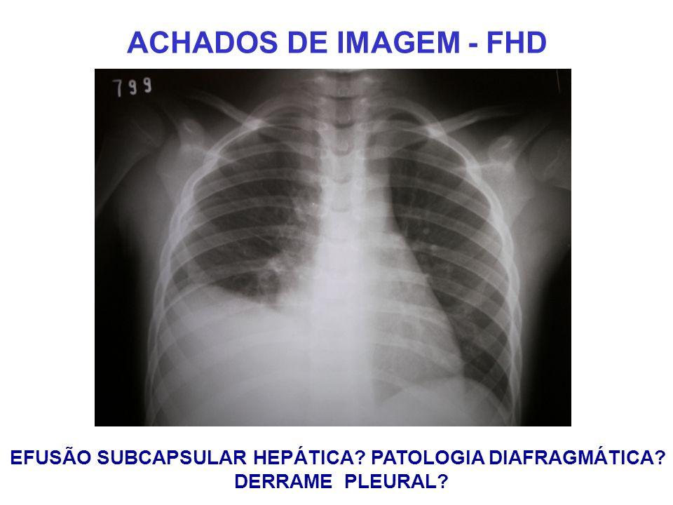 ACHADOS DE IMAGEM - FHD EFUSÃO SUBCAPSULAR HEPÁTICA? PATOLOGIA DIAFRAGMÁTICA? DERRAME PLEURAL?