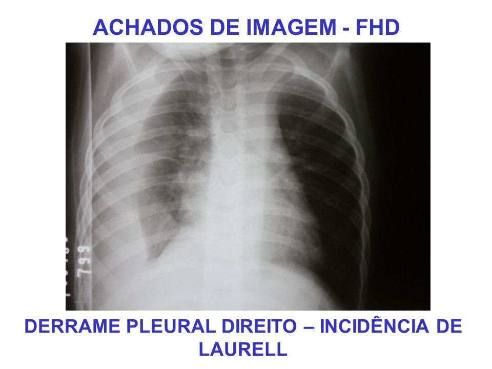 ACHADOS DE IMAGEM - FHD DERRAME PLEURAL DIREITO – INCIDÊNCIA DE LAURELL