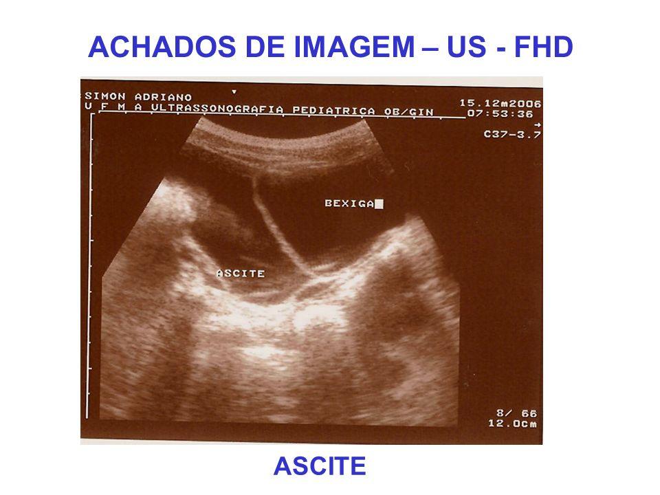 ACHADOS DE IMAGEM – US - FHD ASCITE
