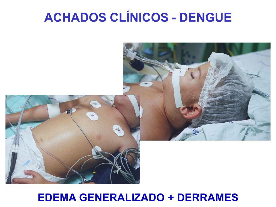 ACHADOS CLÍNICOS - DENGUE EDEMA GENERALIZADO + DERRAMES