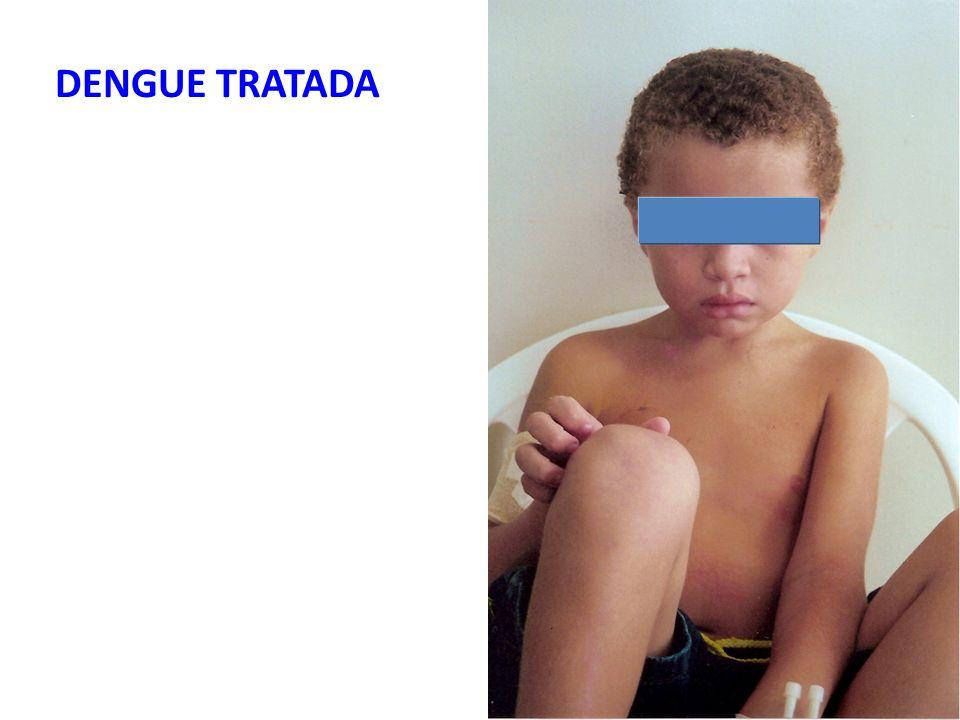 DENGUE TRATADA