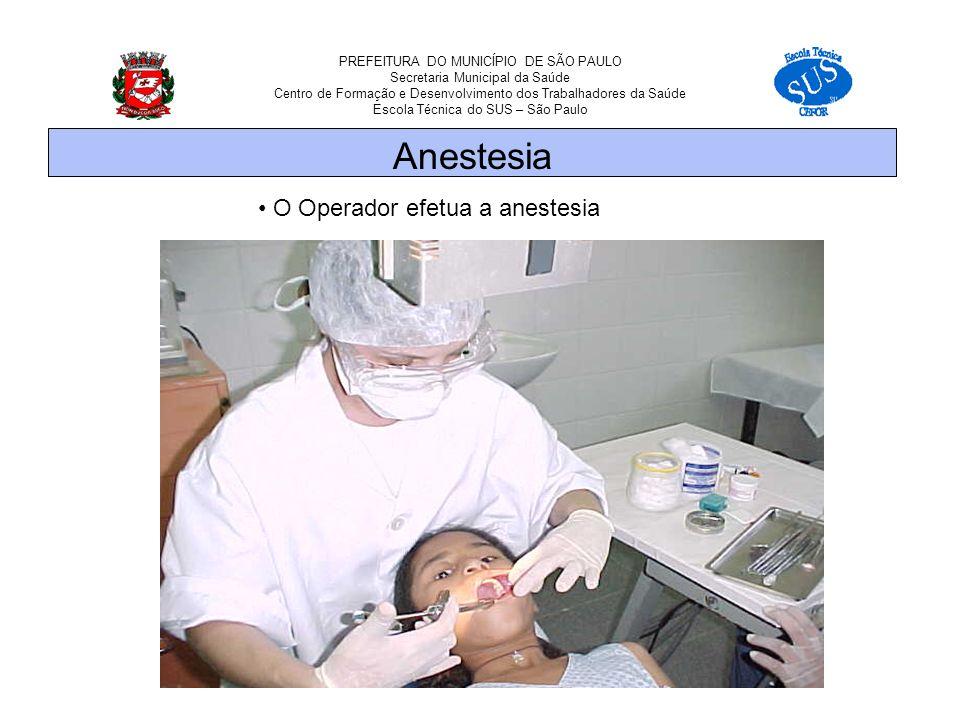 PREFEITURA DO MUNICÍPIO DE SÃO PAULO Secretaria Municipal da Saúde Centro de Formação e Desenvolvimento dos Trabalhadores da Saúde Escola Técnica do SUS – São Paulo O Operador efetua a anestesia Anestesia