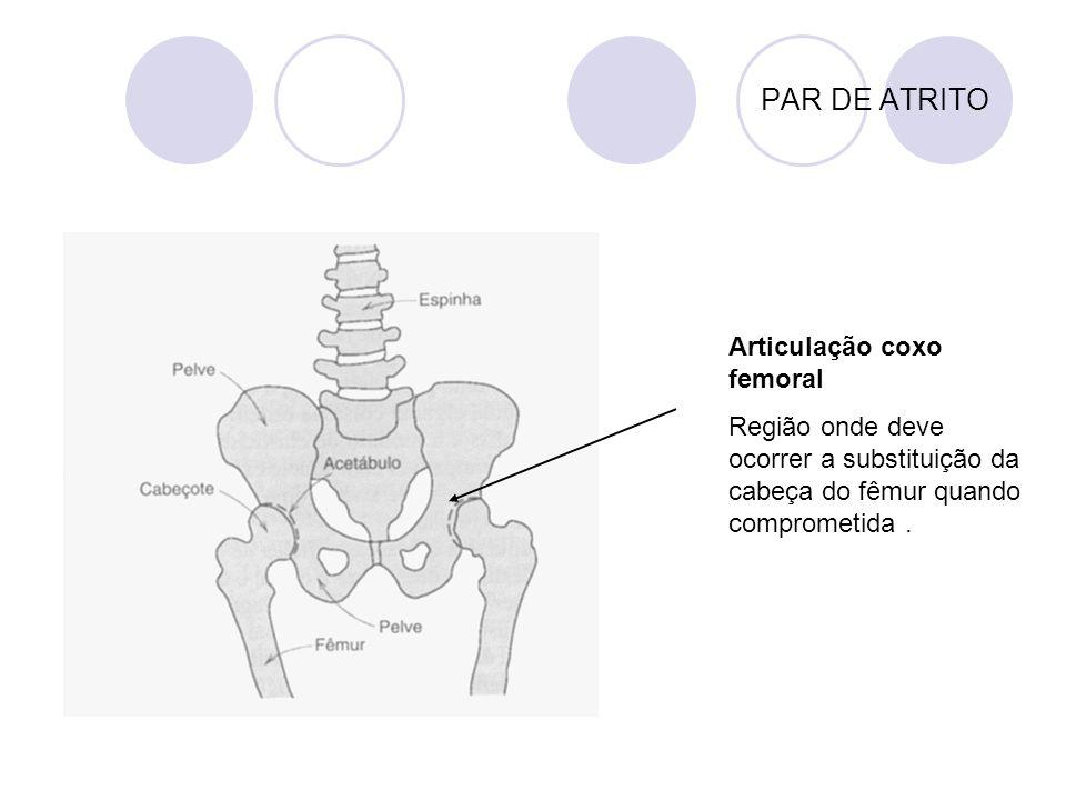 PAR DE ATRITO Articulação coxo femoral Região onde deve ocorrer a substituição da cabeça do fêmur quando comprometida.