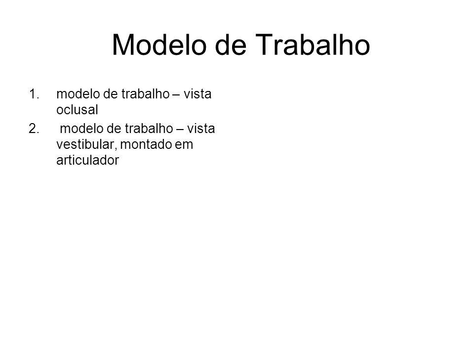 Modelo de Trabalho 1.modelo de trabalho – vista oclusal 2. modelo de trabalho – vista vestibular, montado em articulador