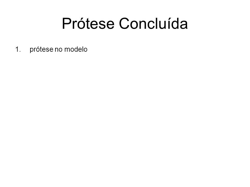 Prótese Concluída 1.prótese no modelo