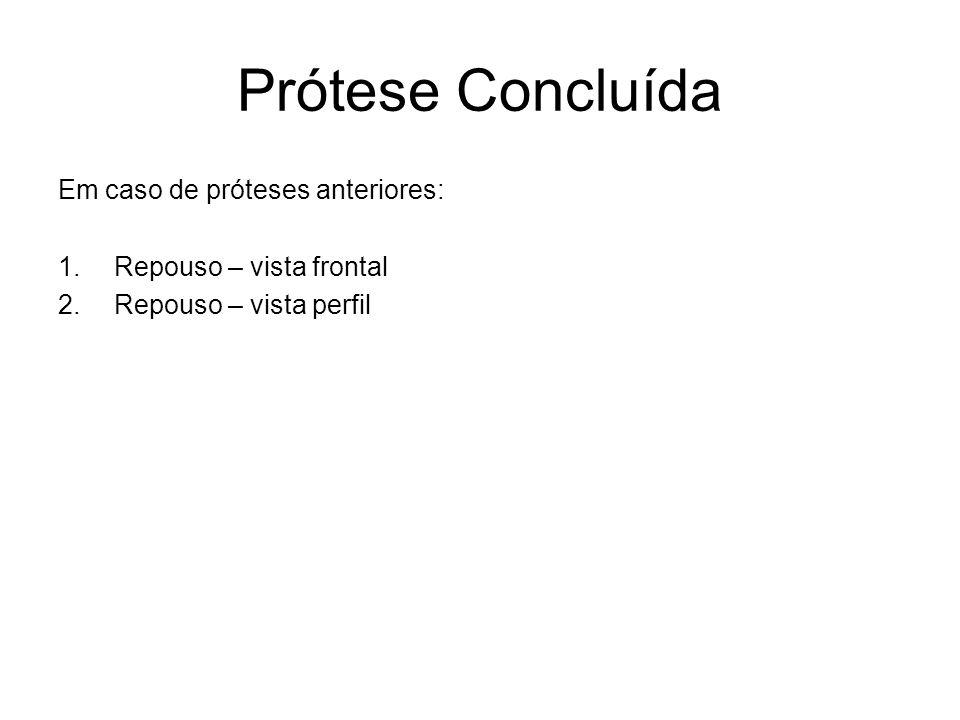 Prótese Concluída Em caso de próteses anteriores: 1.Repouso – vista frontal 2.Repouso – vista perfil