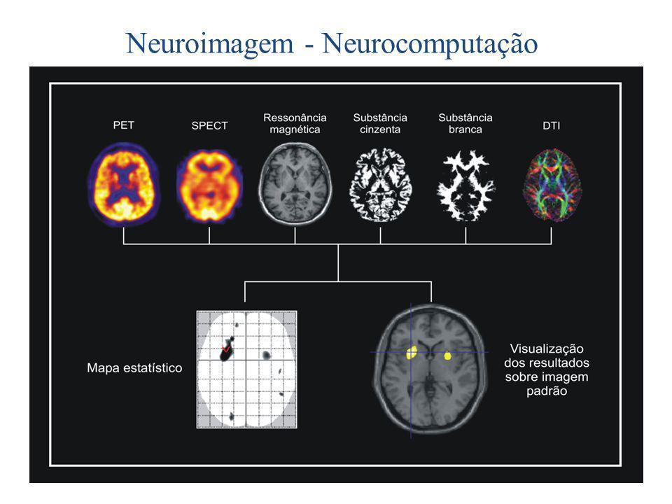 Neuroimagem - Neurocomputação