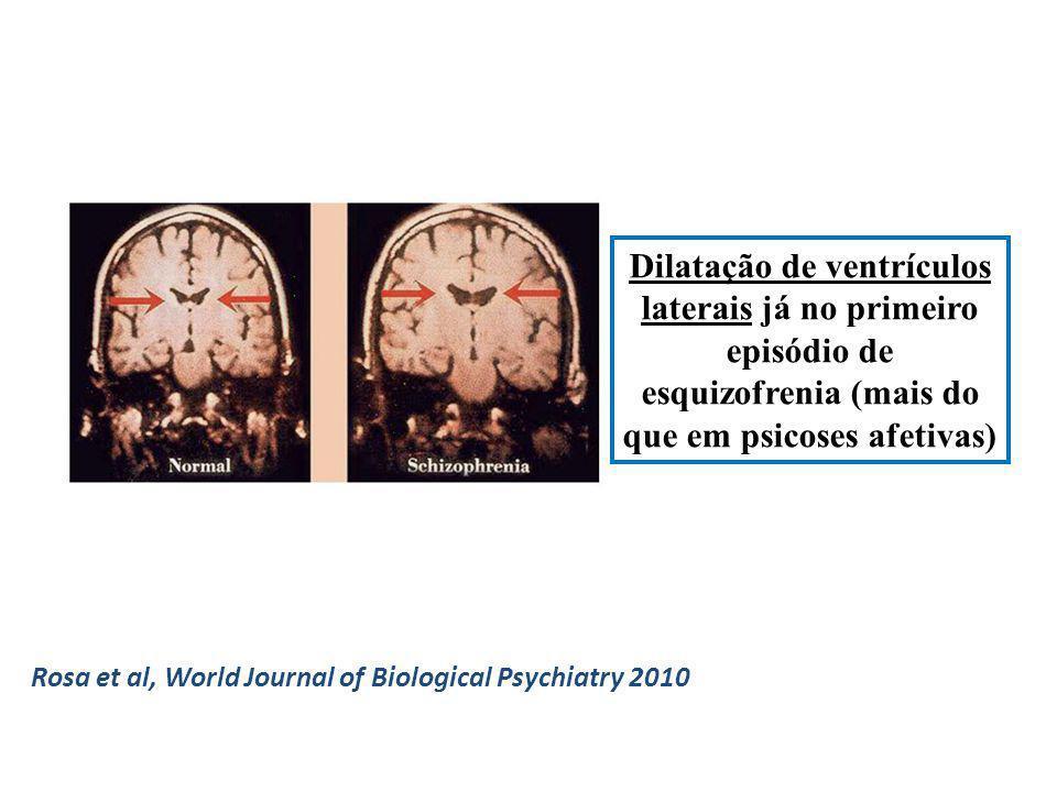 Dilatação de ventrículos laterais já no primeiro episódio de esquizofrenia (mais do que em psicoses afetivas) Rosa et al, World Journal of Biological