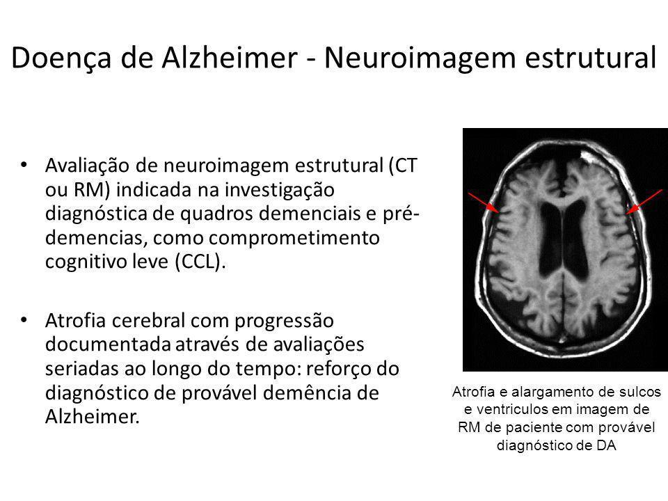 Doença de Alzheimer - Neuroimagem estrutural Avaliação de neuroimagem estrutural (CT ou RM) indicada na investigação diagnóstica de quadros demenciais