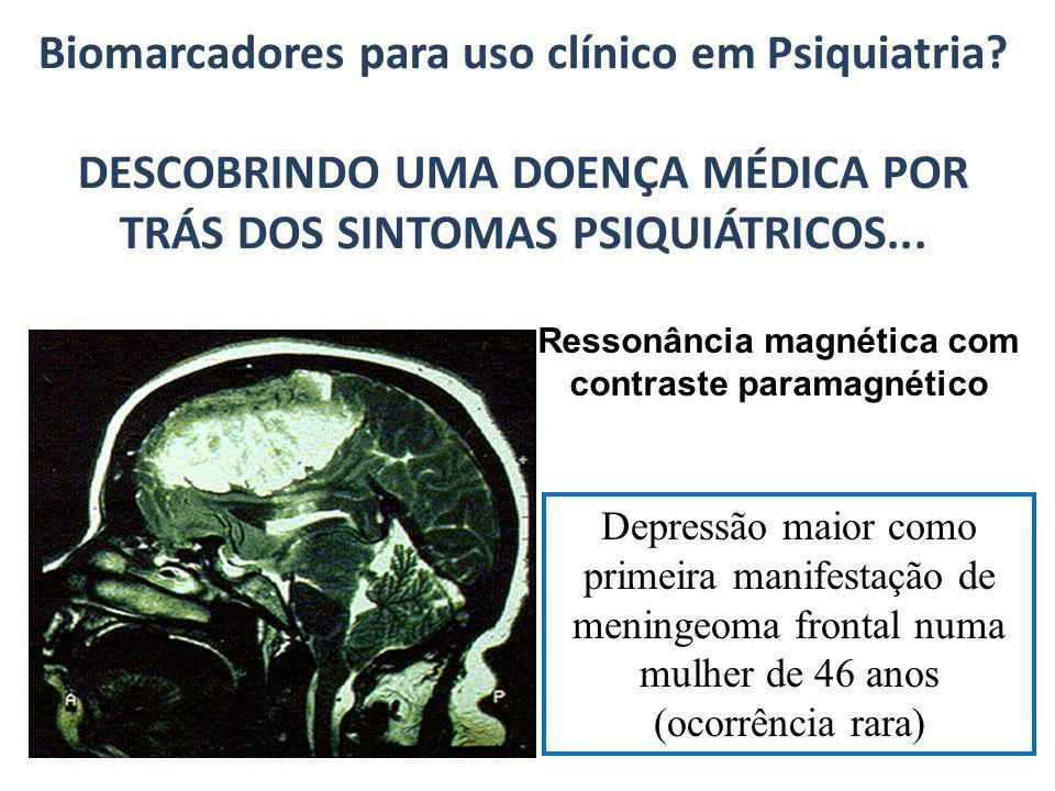 Biomarcadores para uso clínico em Psiquiatria? DESCOBRINDO UMA DOENÇA MÉDICA POR TRÁS DOS SINTOMAS PSIQUIÁTRICOS... Ressonância magnética com contrast