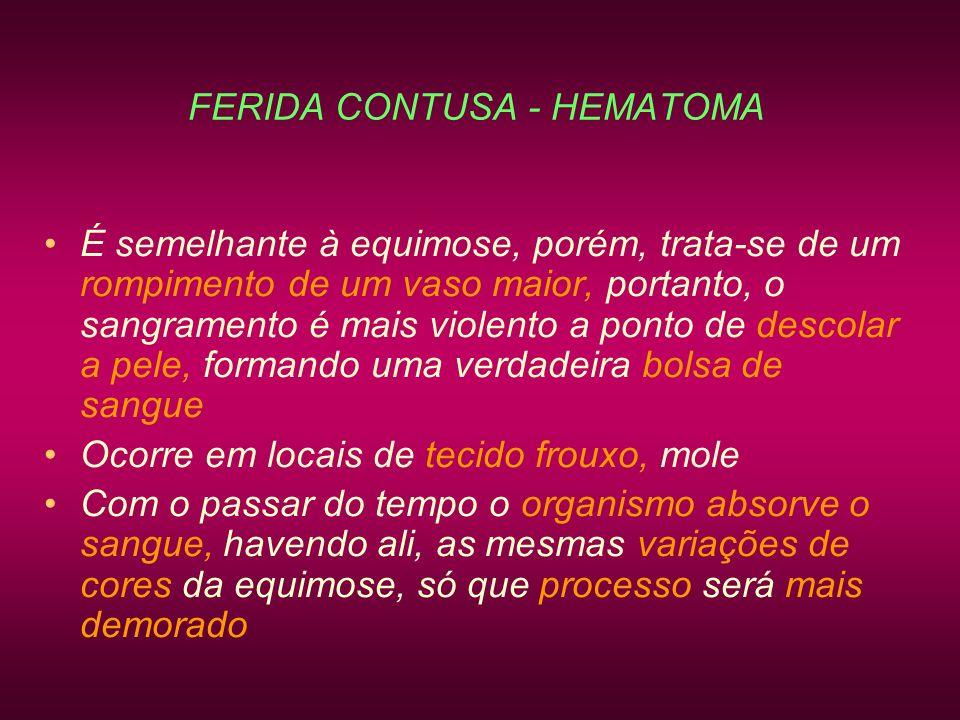 FERIDA CONTUSA - HEMATOMA É semelhante à equimose, porém, trata-se de um rompimento de um vaso maior, portanto, o sangramento é mais violento a ponto