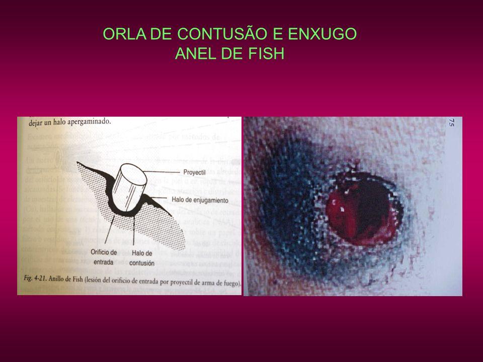 ORLA DE CONTUSÃO E ENXUGO ANEL DE FISH