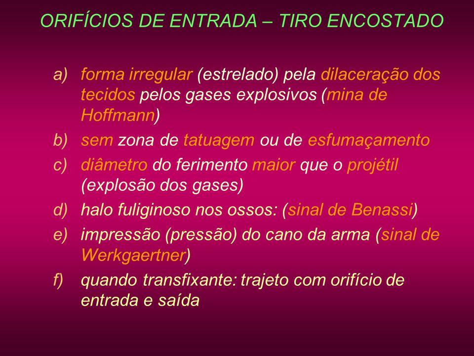 ORIFÍCIOS DE ENTRADA – TIRO ENCOSTADO a)forma irregular (estrelado) pela dilaceração dos tecidos pelos gases explosivos (mina de Hoffmann) b)sem zona