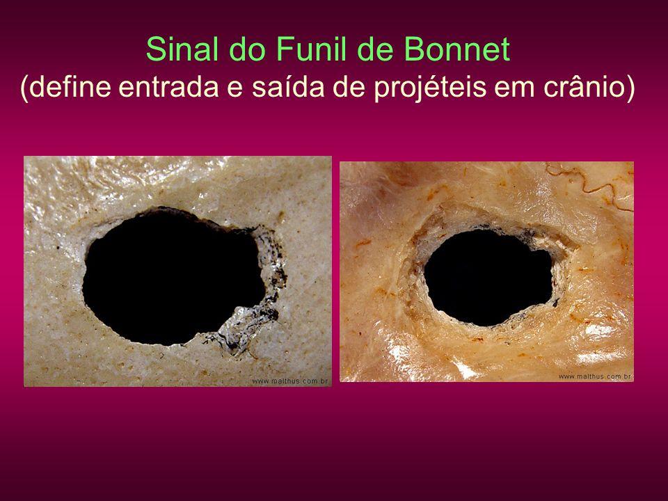 Sinal do Funil de Bonnet (define entrada e saída de projéteis em crânio)