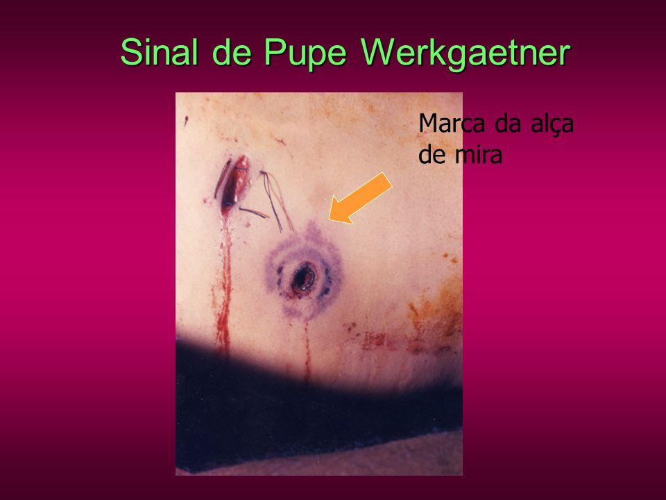 Sinal de Pupe Werkgaetner Marca da alça de mira