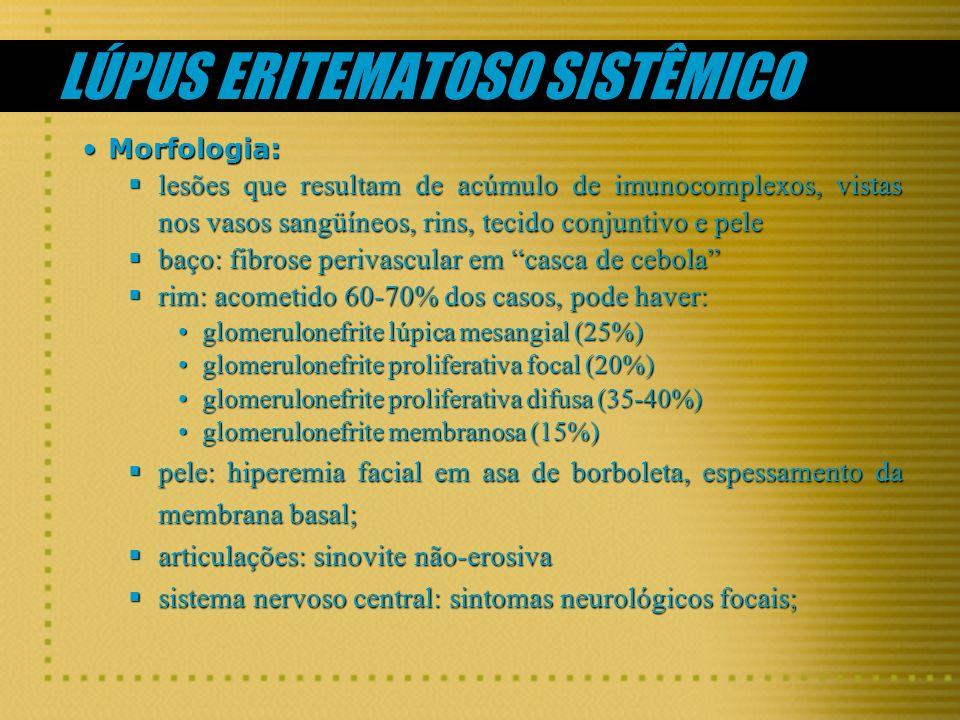 Morfologia:Morfologia: lesões que resultam de acúmulo de imunocomplexos, vistas nos vasos sangüíneos, rins, tecido conjuntivo e pele lesões que result